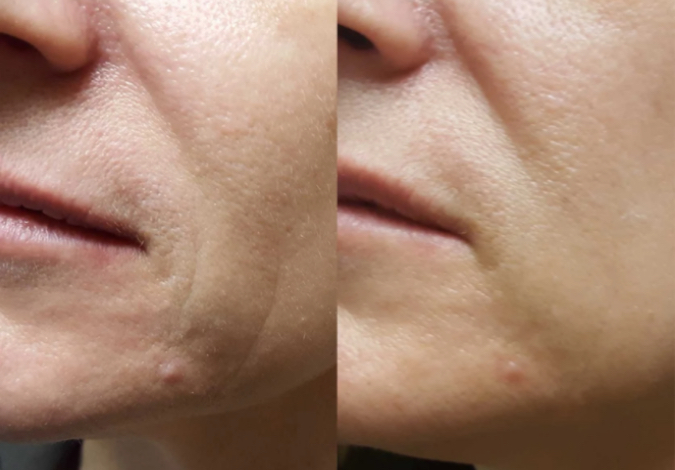ZIIP Beauty Before and After - Click to Shop